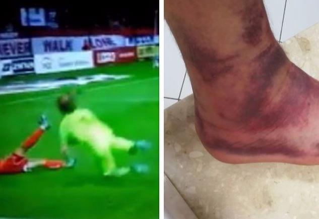 W tej sytuacji bramkarzowi polskiego klubu zarzucono symulowanie. Po kilku godzinach pokazał zdjęcie swojej stopy.