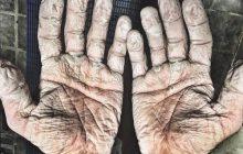 Młody sportowiec opublikował zdjęcie, które wstrząsnęło internautami. W jaki sposób doprowadził dłonie do takiego stanu?