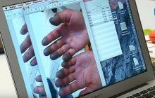 Francuska telewizja pokazała odmrożenia Elisabeth Revol. Lekarz nie wyklucza amputacji palców... [WIDEO]
