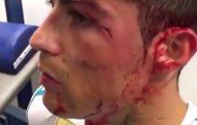 Real Madryt opublikował nagranie z szatni. Tak wyglądała rana Cristiano Ronaldo bezpośrednio po zejściu z murawy [WIDEO]