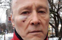 Pieczyński dostał w twarz, bo... miał na sobie czerwoną kurtkę? Zaskakujące doniesienia portalu wPolityce.pl