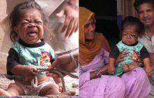 Manpreet Singh wygląda jak niemowlę, a ma... 23 lata. Lekarze rozkładają ręce, a ludzie wierzą, że to wcielenie Boga