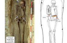 Włochy: Szkielet z średniowiecza zamiast ręki miał... nóż